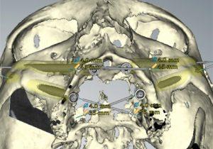 Simulación implante cigomático