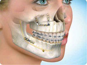 cirugia-ortognatica-madrid1