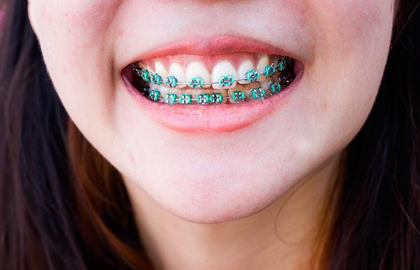 3 consejos para cuidar unos dientes con brackets