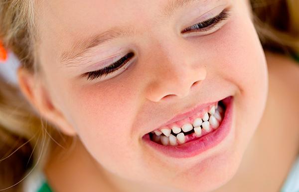 Cómo retrasar la pérdida de piezas dentales