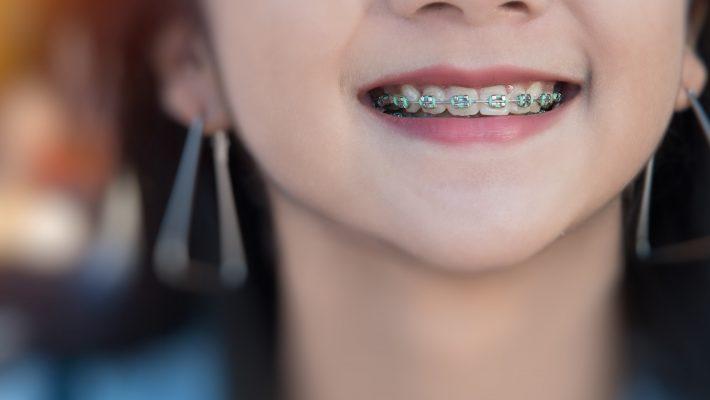 Todo lo que necesitas saber sobre la ortodoncia
